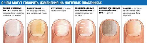 Bolezni-nogtey