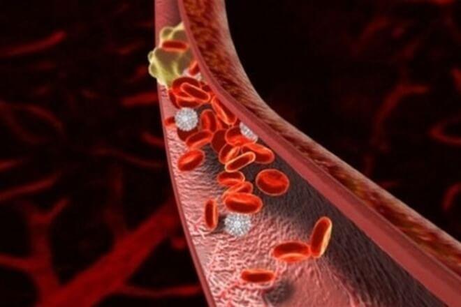 лечение, причины, профилактика тромбов