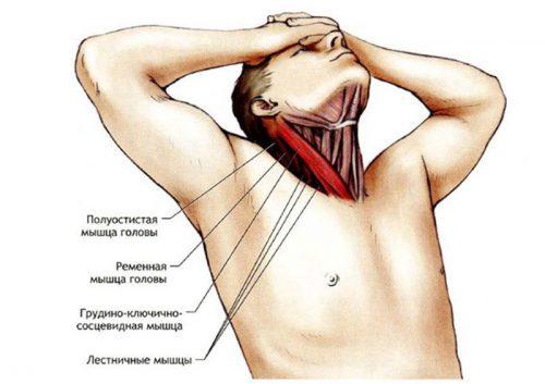 синдром передней лестничной мышцы