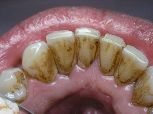 Курение после чистки зубов