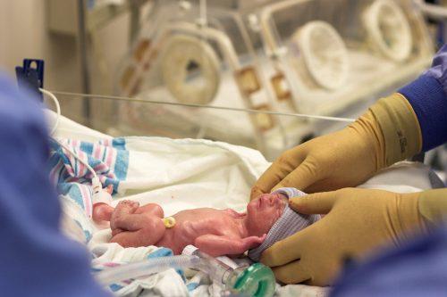 Вес новорожденного составил всего 1 кг.