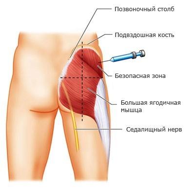 Игла вводится строго в крайнюю верхнюю четверть ягодичной мышцы
