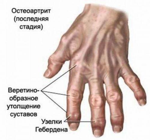 artrit 2 e1465379652116