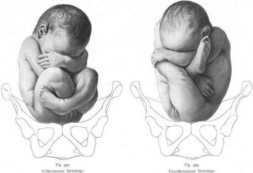 content birth  econet ru e1467634453348