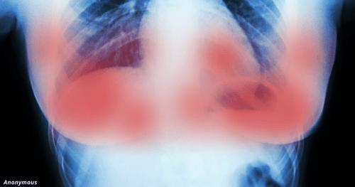1 лечение рака груди