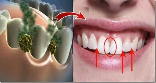 ELIMINATE BAD BREATH IN 5 MINUTES THIS REMEDY WILL DESTROY ALL THE BACTERIA THAT CAUSE BAD BREATH