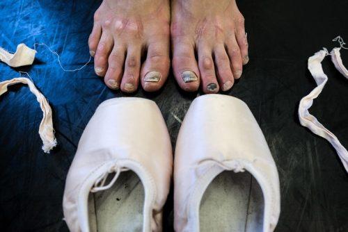 Правда о ножках балерин. Мифы, реальность и фото