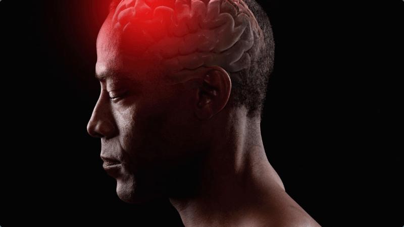 060413 health brain aneurysm head injury concusion 2 2 result