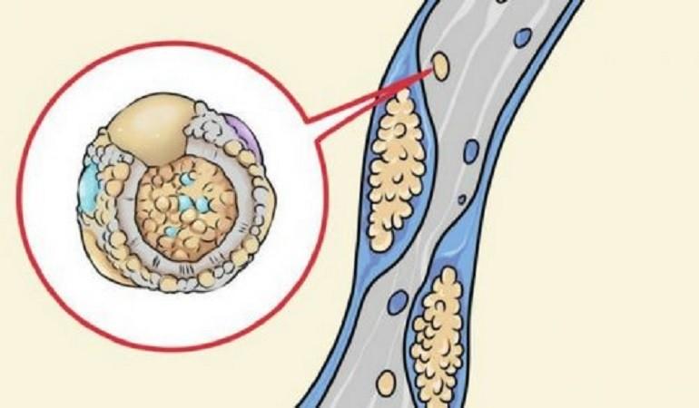 arterii