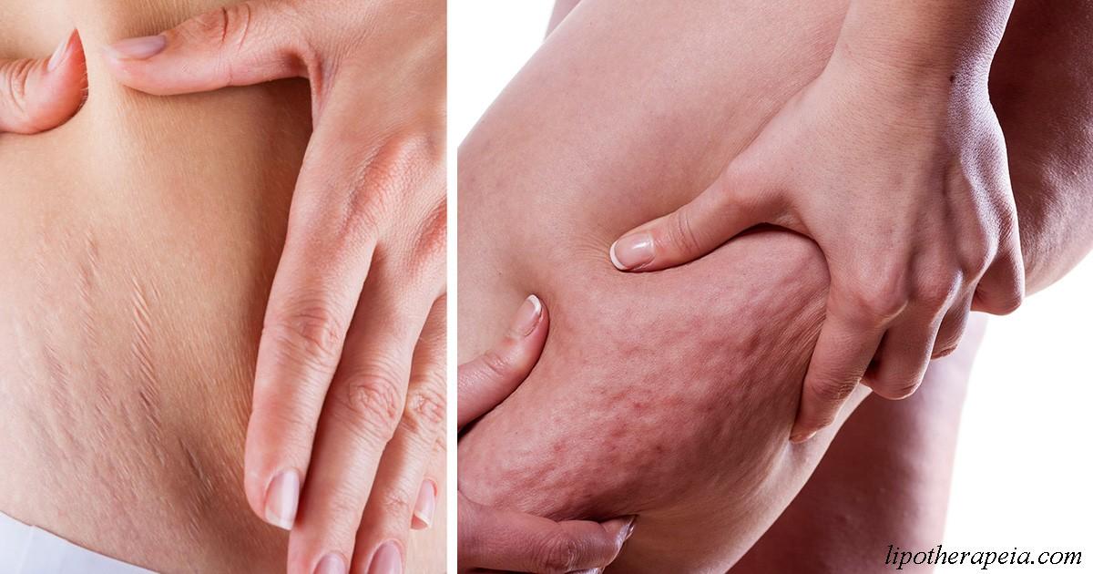 Вот 5 шагов, чтобы получить шанс избавиться от растяжек и целлюлита