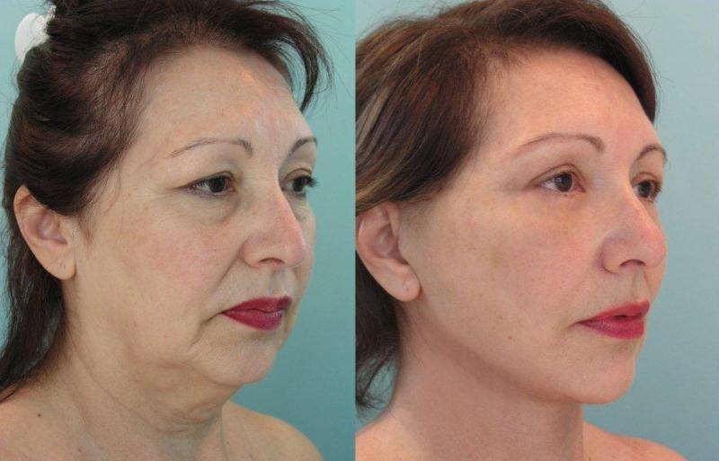 вредные косметологические процедуры фото 4