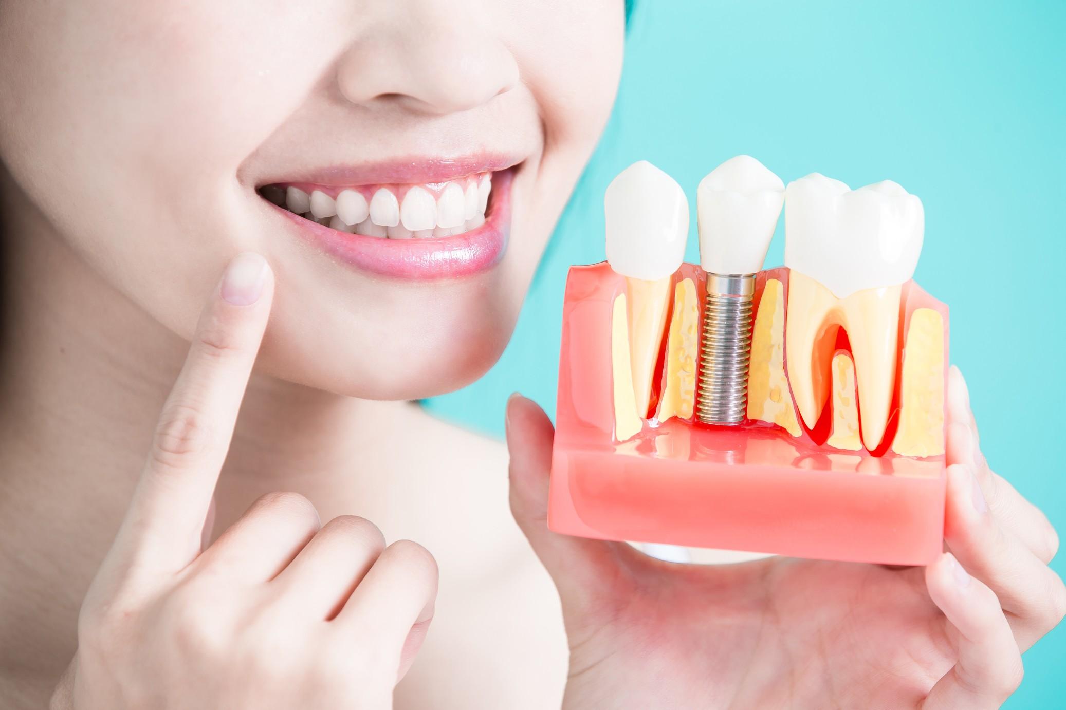 имплантация зубов фото 2